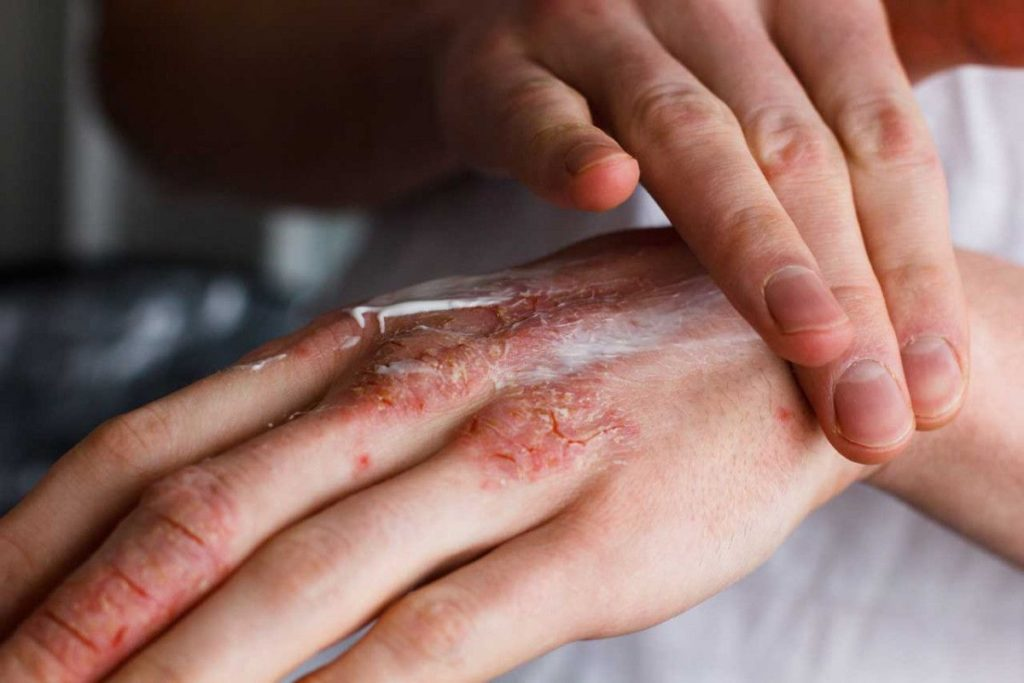 CBD điều trị vết thương hở và ung thư da